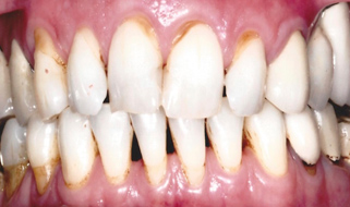 Porcelain Crowns & Veneers